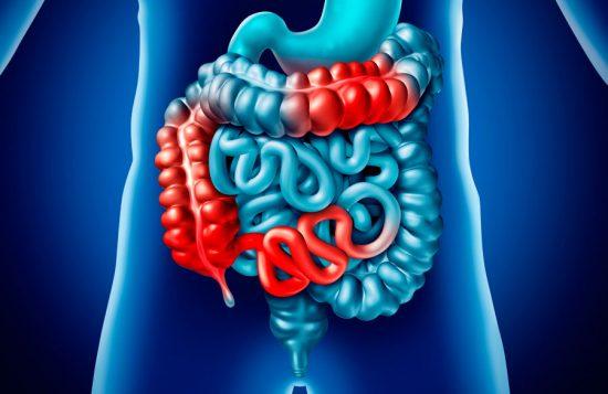 Crohns sjukdom kopplad till ökad risk för kolorektal cancer