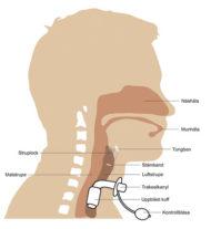Nationella rekommendationer för trakeotomi och trakeostomivård