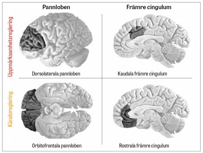 adhd vad händer i hjärnan