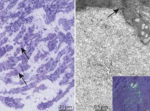 Figur 1. Endomyokardiell biopsi (fall 2). Till vänster: Resininbäddat myokard färgat med toluidinblått, vilket visar omfattande extracellulär lagring av material som omger atrofiska kardiomyocyter (pilar). Till höger: Elektronmikrografi som visar den karakteristiska fibrillära strukturen hos amyloid, som ligger intill en kardiomyocyt (pil). Infälld bild: Paraffininbäddat myokard färgat med Kongo-rött. Amyloiden visar äppelgrön dubbelbrytning under polariserat ljus.  Bilderna är framtagna av Anders Oldfors, patologkliniken, Sahlgrenska universitetssjukhuset, Göteborg.