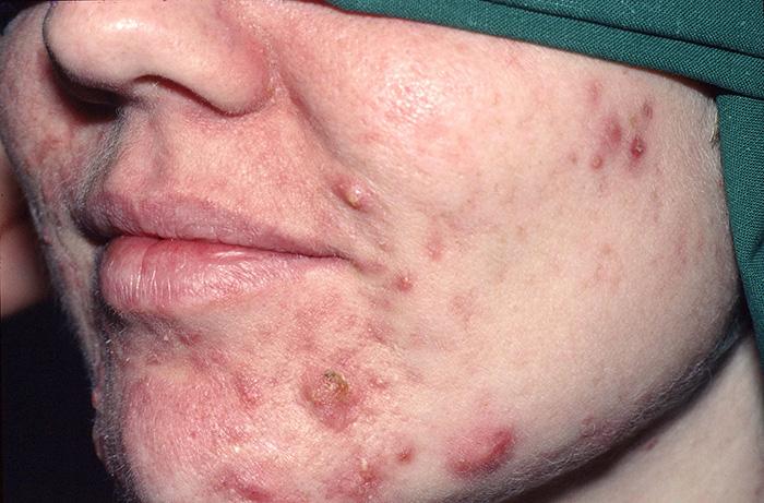 gravid acne behandling