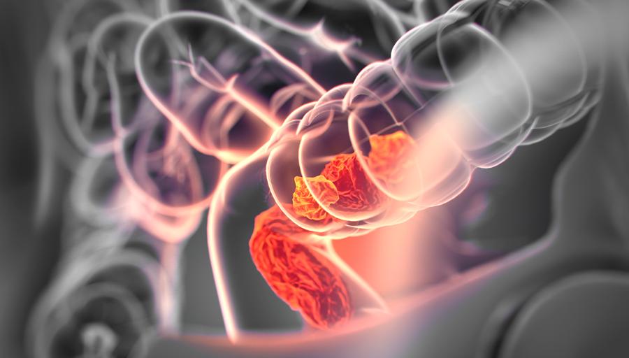 Ökad risk för död i kolorektal cancer vid ulcerös kolit