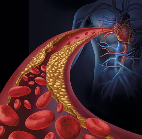 Inflammation är inte bara en markör vid ateroskleros, utan en aktiv del av patogenesen. Fynd från studien CANTOS har visat att man genom att behandla inflammation (med en monoklonal antikropp mot interleukin-1-beta) också uppnådde kardiovaskulär prevention. Foto: Shutterstock/IBL