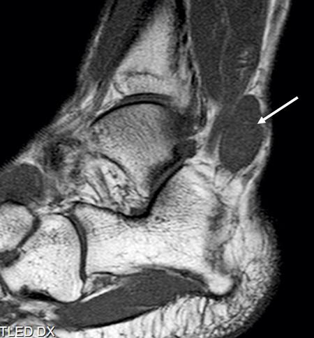 Synovialt sarkom – en högmalign tumörsjukdom som kan ha egendomligt kliniskt förlopp