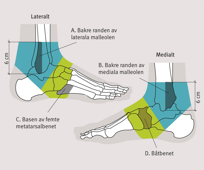 fraktur i foten läktid