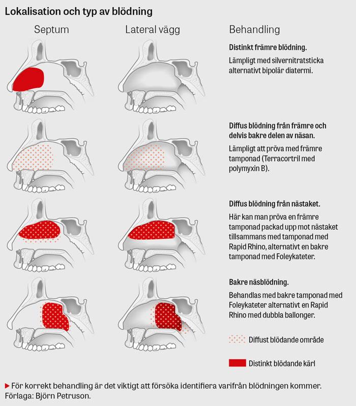 näsblod bränna blodkärl