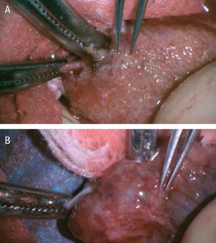 Figur 3. Testikelparenkym under peroperativ mikroskopering: A) fina testikulära tubuli, B) atrofi med avsaknad av tubuli.