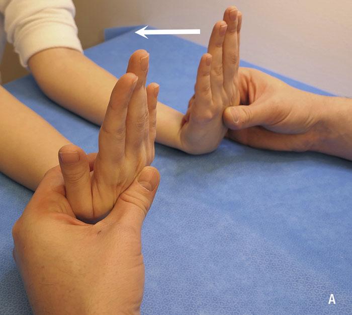 Undersökningstekniker vid misstänkt karpaltunnelsyndrom. Positivt test utlöser pirrningar/domningar i medianusnervens innerveringsområde (tumme, pek-, långfinger och radiella omfånget av ringfingret).  A. Phalens test. Utför helst med så raka armbågar som det går, ifall patienten även har nervkompression i armbågsnivå som då provoceras av flektionen i armbågarna och kan vilseleda resultatet i handen.