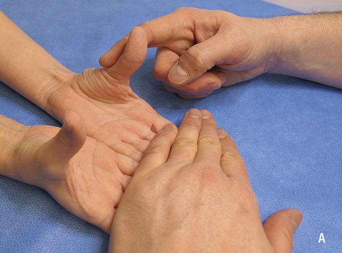 Undersökningsmoment vid misstänkt karpaltunnelsyndrom.  A. Undersökning av muskelstyrka i musculus abductor pollicis brevis. Placera patientens händer på ett underlag med handflatorna uppåt. Tryck ner tummen mot handflatan och undersök om det finns skillnad i muskelstyrka, jämfört med kontralateral tumme.