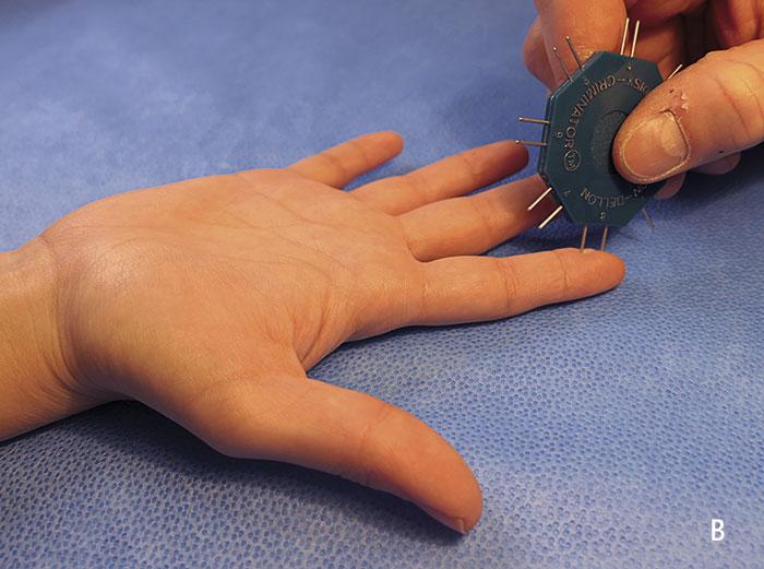 B. Sensibilitetstestning med tvåpunktsdiskrimination. I normalfallet föreligger ett diskriminationsavstånd under 5 mm, men jämför alltid med kontralateralt finger.