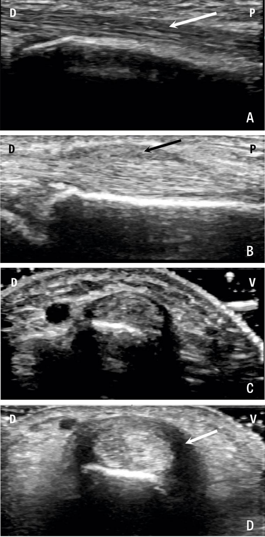 Ultraljudsbild av första dorsala senfacket och musculi abductor pollicis longus (ABL) och extensor pollicis brevis (EPB).  A. Längsgående bild av APL-och EPB-senorna (vit pil) på person utan morbus de Quervain, dorsalt (D) och proximalt (P).  B. Längsgående bild på patient med långt stående morbus de Quervain. Notera förtjockat  retinakel (svart pil) och förtjockad sena.  C. och D. Tvärgående bild av dessa senfack, ventralt (V) och dorsalt (D). Notera den uttalade tenosynoviten (vit pil) på patienten med morbus de Quervain.