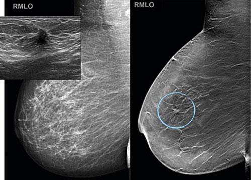 knuta i bröstet
