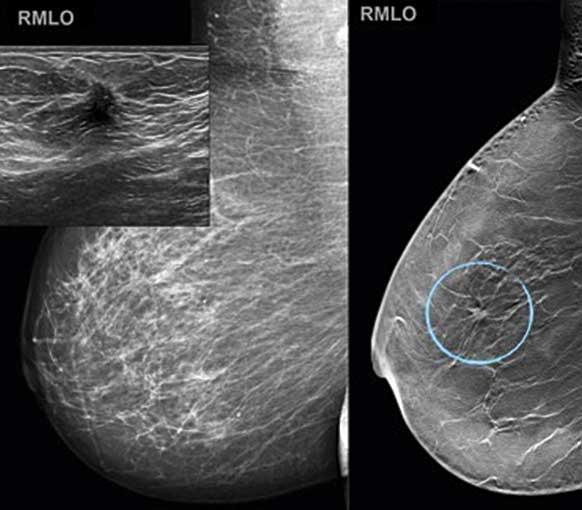 fibroadenom i bröstet