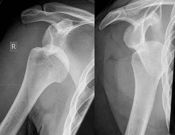 Slätröntgen är en bra metod för att påvisa främre axelluxation och Hill–Sachs skada.