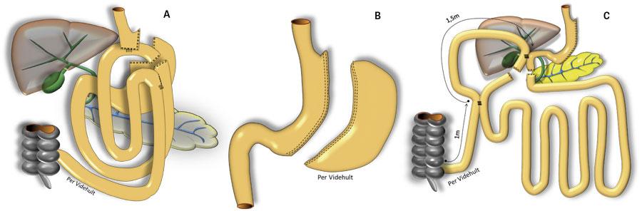 Figur 1. A: Gastrisk bypass, B: Sleeve-gastrektomi, C: Duodenal omkoppling Illustrationer: Per Videhult