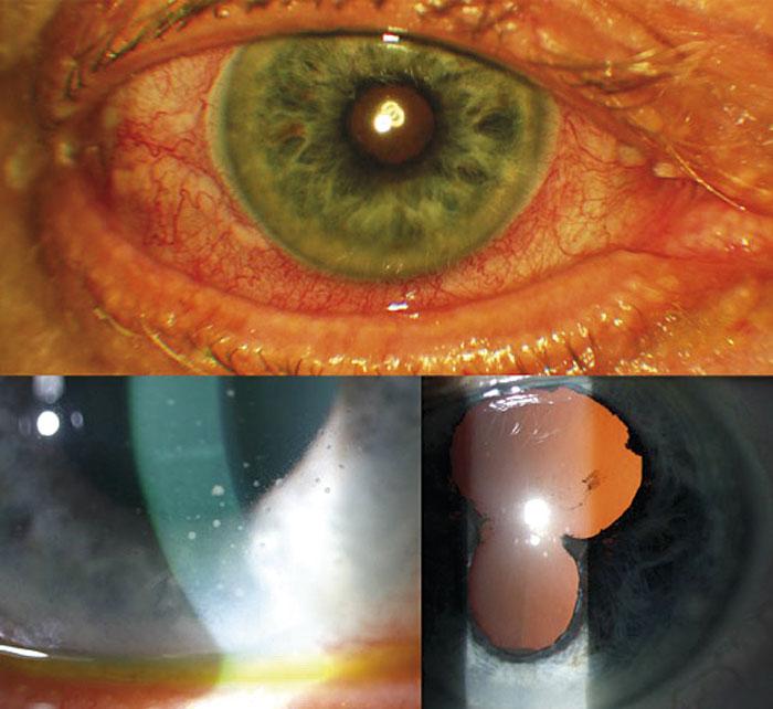 Figur 2. Akut iridocyklit. Överst: Konjunktival rodnad med ciliär injektion. Nederst tv: Keratiska precipitat (inflammatoriska depositioner på hornhinnans endotel) och ljusväg. Nederst th: Synekier (efter farmakologisk dilatation).