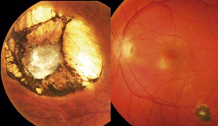 Figur 4. Retinokoroidit vid toxoplasmos, ett exempel på infektiös bakre uveit. Till vänster: Stort ärr orsakat av medfödd toxoplasmos. Till höger: Förvärvad toxoplasmos med ett gammalt pigmenterat ärr nedåt vänster och ett nytt aktivt infiltrat mitt i gula fläcken.