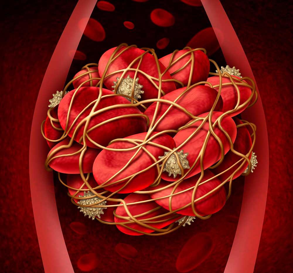 IVO-kritik mot nätläkares undersökning