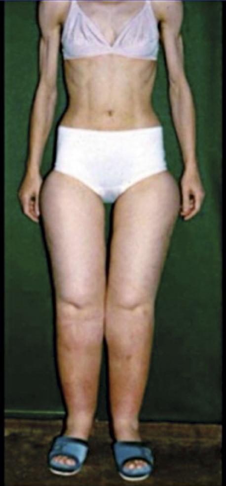 Figur 2. Patient med lipödem. Anorektisk överkropp under försök att banta ned underkroppen. Foto:Josef Stutz