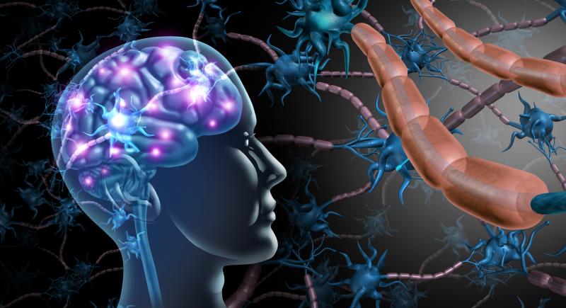 Får kritik för felaktig MS-diagnos