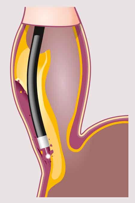 Figur 3. POEM-proceduren med endoskopisk dissektion i submukosarummet och klyvning av muskulaturen i esofagus.