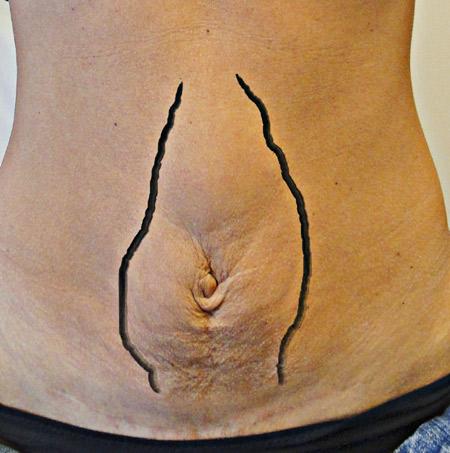 bråck i magen efter graviditet