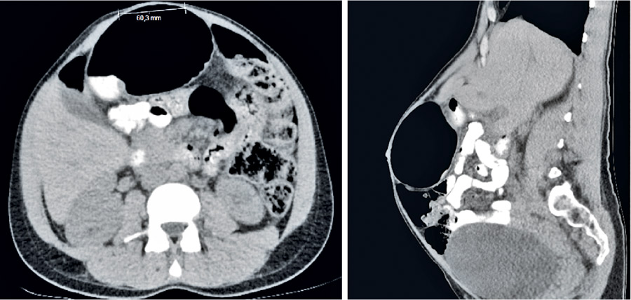 Figur 2. Rektusdiastas och uttänjd rektusmuskulatur under krystning (datortomografi), bilden till höger från sidan.