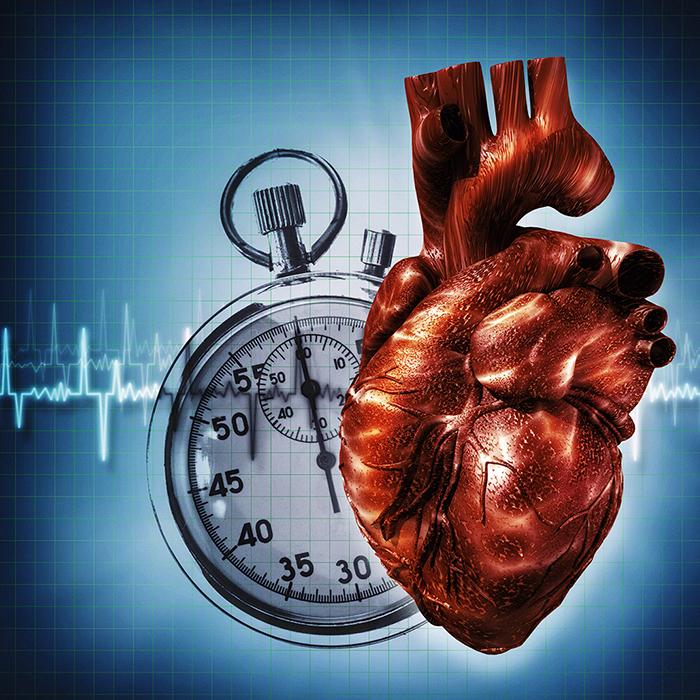 Tiden är viktig. Tiden från hjärtstopp till larm, tiden från hjärtstopp till start av HLR och tiden från larm till ambulansens ankomst kan alla kopplas till överlevnadschans. Illustration: Tolokonov/Colourbox