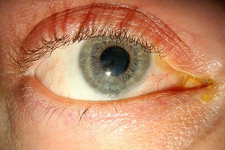 oculentum simplex ögonlock