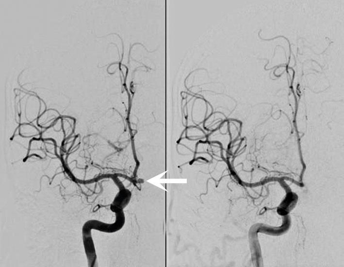 aneurysm i hjärnan behandling