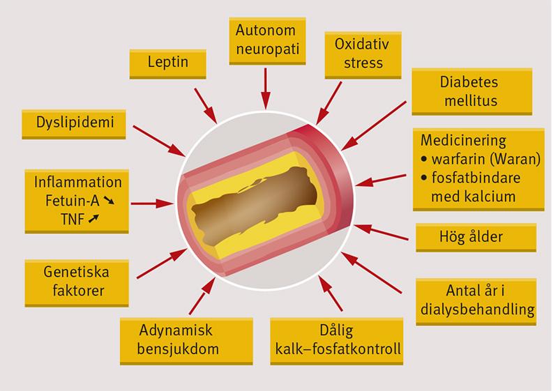 förkalkning i njuren