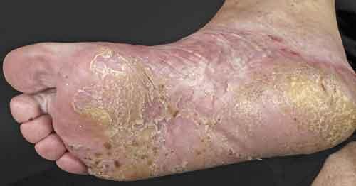 vad orsakar psoriasis