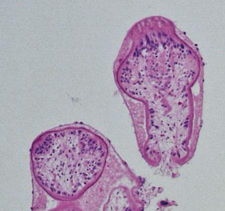 Figur 6.Mikroskopisk bild med längd- och tvärsnittade protoscolices (förstadier till bandmaskhuvuden). I längdsnitt ca 140 µm. Förstoring ×400.