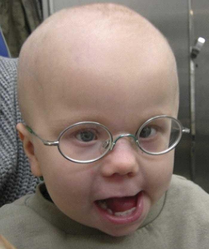 Figur 2. Pojke med mikroftalmiskt högeröga, astigmatism och grav myopi i vänster öga samt hörselnedsättning. Behandling med konformer inleddes vid 9 månaders ålder, och den första ögonprotesen fick han som 1-åring. Övre bilden vid 6 månaders ålder, undre bilden vid 2 års ålder med ögonprotes då man uppnått god orbital tillväxt och ett kosmetiskt tillfredsställande resultat. Foto: Marie Odersjö