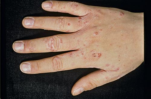 Figur 4. Utslag på hand.Foto: Medicinsk bild, Karolinska universitetssjukhuset