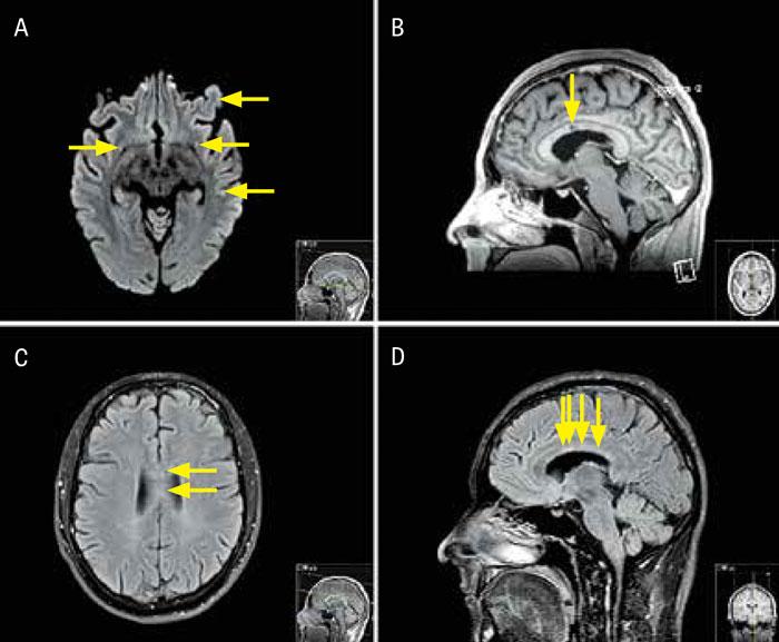 Figur 1. Fall 1. A) Axial diffusionsviktad MR-bild visar multipla små infarkter (pilar).  B) Sagittal MR-bild (T1-viktad volymsekvens med gadolinium) visar en lågsignalerande förändring (»punched-out«-lesion) i corpus callosum (pil). C) MR-bild (axial FLAIR [fluid attenuated inversion recovery]-sekvens) visar »punched-out«-lesioner i mitten av corpus callosum (pilar). D) MR-bild (sagittal FLAIR-sekvens) visar linjära defekter (»spokes«) i de centrala fibrerna i corpus callosum (pilar).