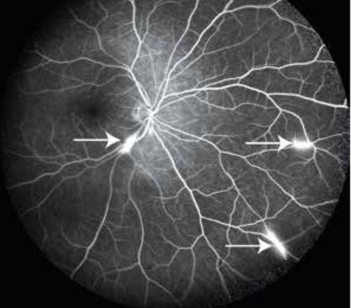Figur 2. Fall 1. Retinal fluoresceinangiografi visar mikroangiopati med hyperfluorescens i artärväggarna och läckage av fluorescein (pilar).