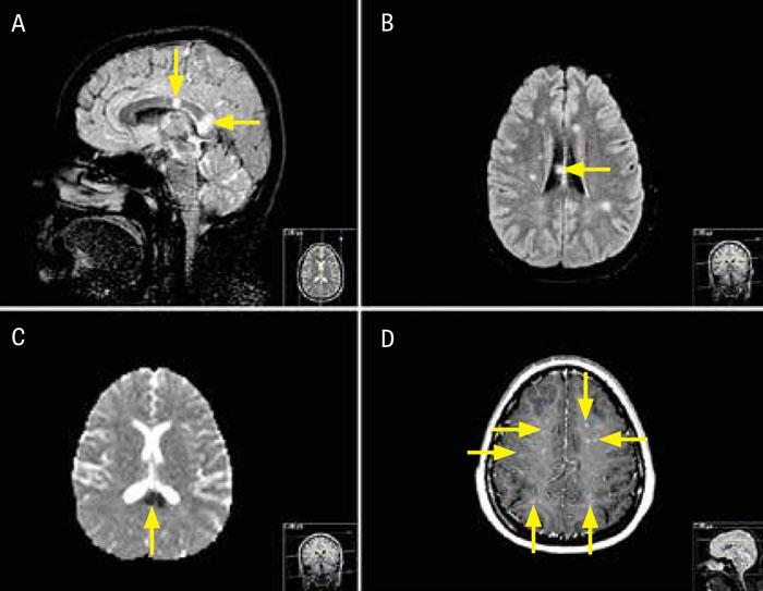 Figur 3. Fall 2. A) MR-bild (sagittal FLAIR-sekvens) visar karakteristiskt mönster med två stora runda, »snöbollslika« förändringar (pilar) i mitten av corpus callosum. B) MR-bild (axial FLAIR-sekvens) visar en förändring i mitten av corpus callosum (pil) och multipla vitsubstansförändringar, som först väckte misstanke om multipel skleros. C) Axial MR-bild (ADC [apparent diffusion coefficient]-karta) visar minskad diffusion i den stora förändringen längst bak i corpus callosum (pil). D) Axial MR-bild (T1-viktad volymsekvens med gadolinium) visar spridd leptomeningeal kontrastuppladdning (pilar).