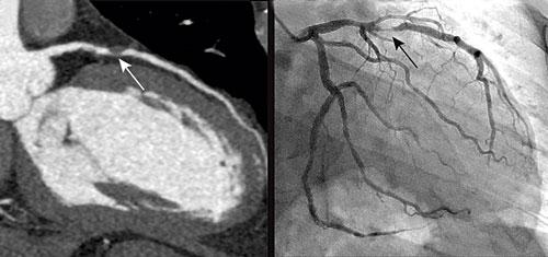 Till vänster: Datortomografiundersökning av kranskärl hos en 51-årig man med angina pectoris. Vit pil visar tät stenos i vänster koronarartärs främre nedåtstigande gren (LAD). Till höger: Traditionell kranskärlsröntgen hos samma patient. Svart pil visar samma stenos som bilden till vänster.