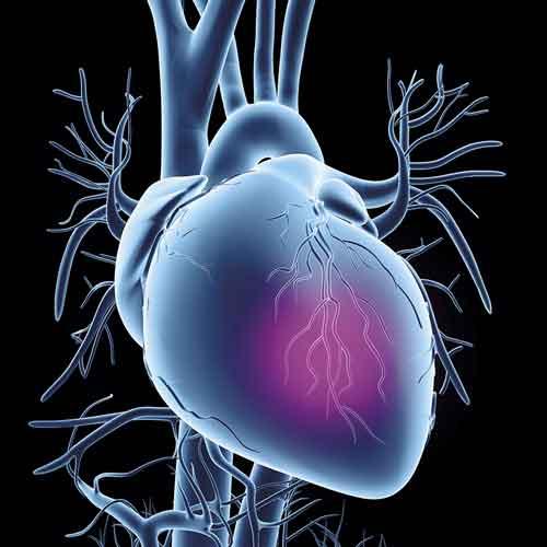 Stabil kranskärlssjukdom är en vanlig orsak till utredning i såväl primärvården som på sjukhus. Utredningens bas är bedömning av patientens risk för kranskärlssjukdom baserad på ålder, kön och typ av bröstsmärta. Illustration: Alfred Pasieka/Science Photo Library/IBL