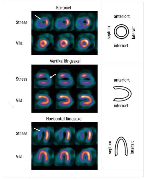 Exempel på myokardskintigrafisk undersökning med reversibel perfusionsdefekt. De övre delarna i bilderna visar isotopfördelningen efter stress (arbetsprov) med nedsatt isotopupptag apikalt och septalt, motsvarande försörjningsområdet för vänster koronarartärs främre nedåtstigande gren (LAD) (markerat med vit pil). De nedre delarna av bilderna visar samma patient undersökt i vila; där ses ett jämnt upptag över hela vänsterkammaren. Vänster kammare presenteras utifrån tre olika snitt: kortaxel, vertikal längsaxel och horisontell längsaxel.