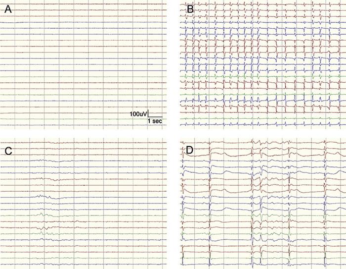 Figur 1. »Högmaligna« EEG-mönster som är associerade med dåligt neurologiskt utfall om de registreras drygt 48 timmar efter hjärtstopp. A) helt flack/supprimerad bakgrund <10 μV, B) helt flack/supprimerad bakgrund med överlagrade periodiska urladdningar, C) och D) burst–suppression med >50 procents suppressionstid utan (C) eller med (D) överlagrade epileptiforma urladdningar.