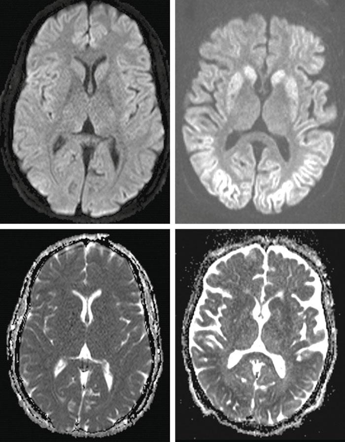 Figur 4. Ischemiska/anoxiska skador i hjärna efter hjärtstopp visualiserade med magnetresonans. Överst till vänster: normal diffusionsviktad bild; överst till höger: omfattande kortikala skador som framstår vita på diffusionsviktade bilder; underst till vänster: normal bild med »apparent diffusion coefficient« (ADC); underst till höger: omfattande kortikala skador som framstår svarta på ADC-karta.