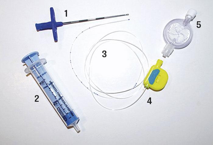 Vid anläggande av epiduralanalgesi används en grov Tuohy-nål med centimetermarkeringar och uppåtböjd spets, som riktar katetern inne i epiduralrummet (1). Epiduralrummet identifieras med hjälp av »loss of resistance«-teknik, och en speciell spruta används (2). Därefter förs katetern (3) in genom Tuohy-nålen, nålen avlägsnas, en sprutadapter (4) sätts på katetern, och lokalanalgetikum ges genom ett bakteriefilter (5) (först ges en liten testdos för att utesluta spinalt anslag). Bolus- och/eller infusionsregim ges med lokalanalgetikum och kortverkande opioid [6, sidorna 75-8].