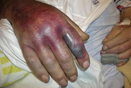 Figur 3.Bettstället med omgivande nekrotiskt skadad vävnad hos patienten i Figur 2.