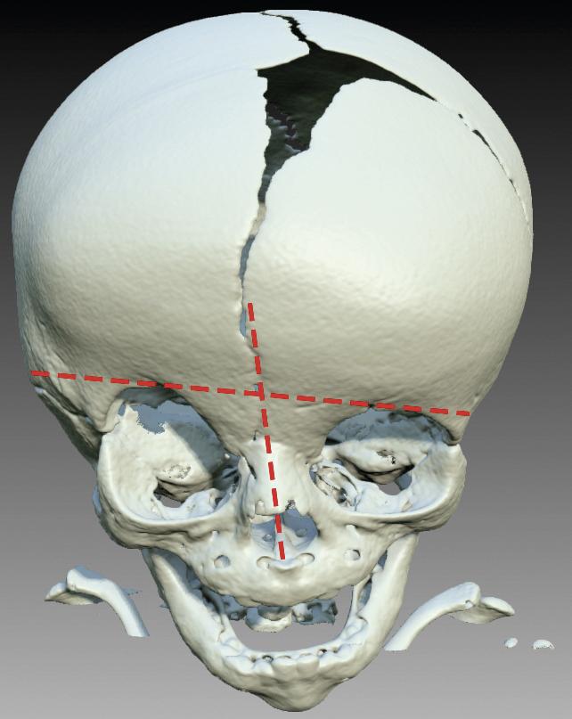 Högersidig koronariasynostos med så kallad harlekindeformitet, där  höger ögonhålas övre parti är upphöjt. Näsan devierar på så sätt att  näsroten pekar mot den slutna koronariasuturen.