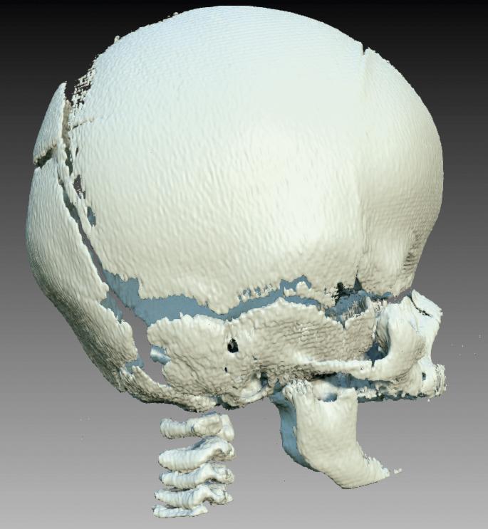 Bilateral koronariasynostos med kort, bred och hög skalle.