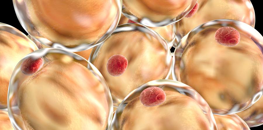 Nya riktlinjer skärper behandling av diabetes