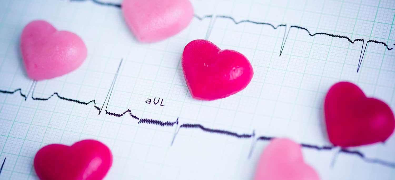 Pediatrisk EKG-tolkning