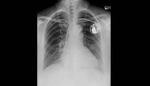 Ett avstånd på minst 8 cm rekommenderas mellan eventuell implanterad dosa (pacemaker/intern defibrillator) och de externa elektroderna. Dosans kanter bör palperas för att säkra placeringen. Foto: Shutterstock/IBL